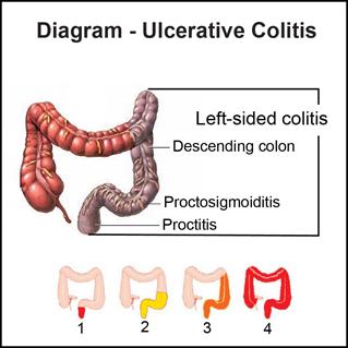 Ulcerative Colitis Diagram Www Pixshark Com Images